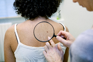 The Warning Signs Of Skin Cancer That Aren T Moles Darwin Dermatology